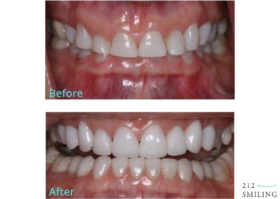Upper and Lower Dental Veneers Photos