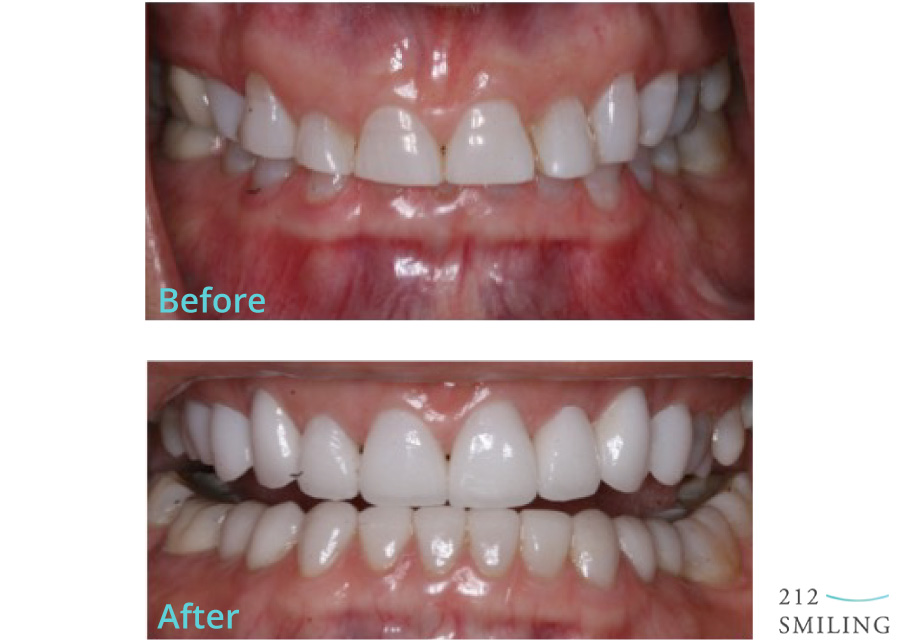 Upper-Veneer-Lower-Veneer-Before-and-After
