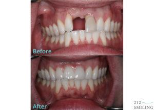 Ceramic-Dental-Bridge-Before-and-After