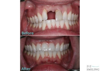 Ceramic Dental Bridge Before and After