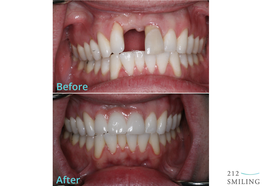 Ceramic Dental Bridge Before and After Photo