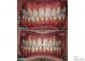 Invisalign-Before-and-After-Photo