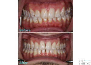 Invisalign-Before-and-After-Photos