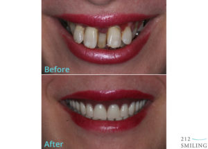 Same-Day-Dentures-Before-and-After