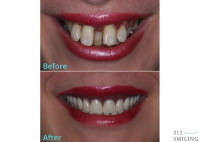 Same Day Dentures Before and After