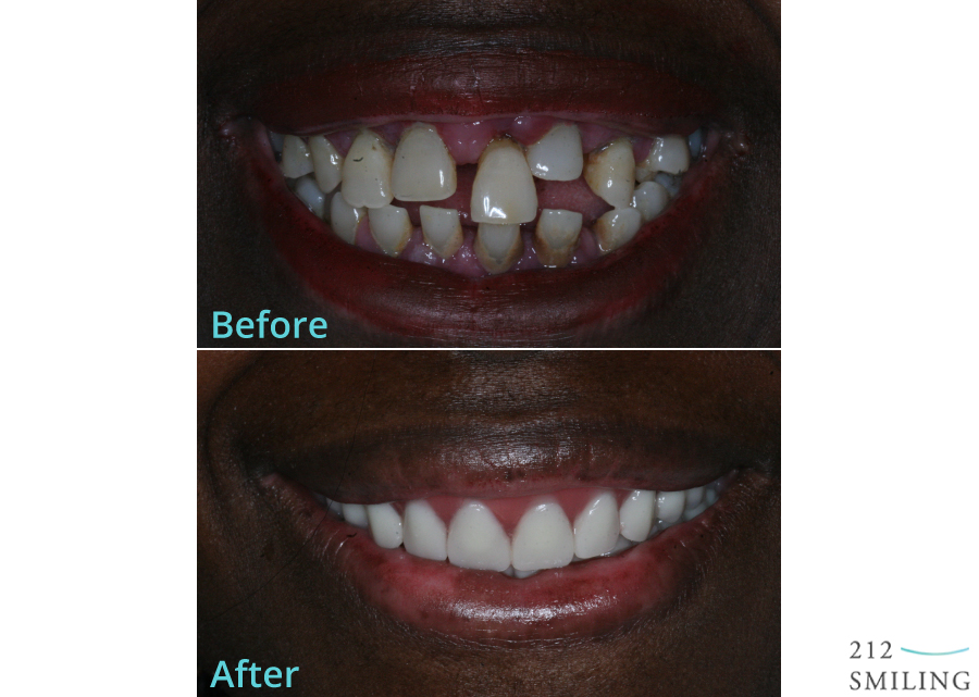 Same Day Denture Before and After NYC Photo