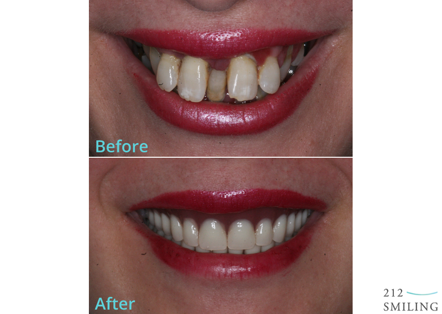 Same Day Denture Before and After Photo