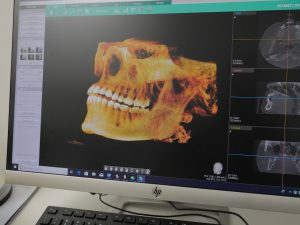 212 Smiling 3D Dental Imaging and Xrays