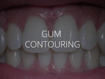 Gum Contouring - Periodontal Services - 212 Smiling