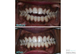 Invisalign-Invisible-Braces-Before-After