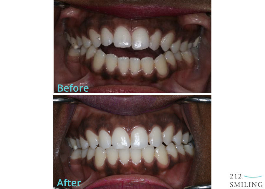 Invisalign Before and After Photo