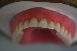 Same Day Denture Close Up