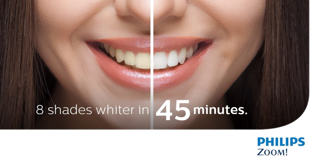 zoom-teeth-whitening-1024x535