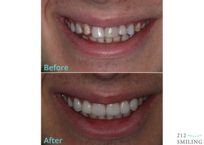 Before and After Photos Porcelain Veneers