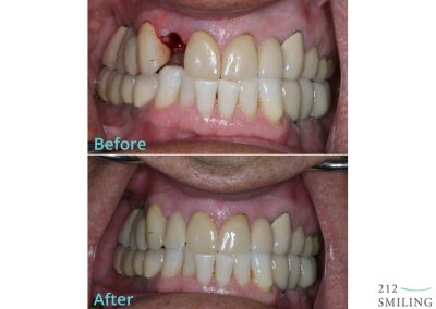 New York Dental Implant Before and After
