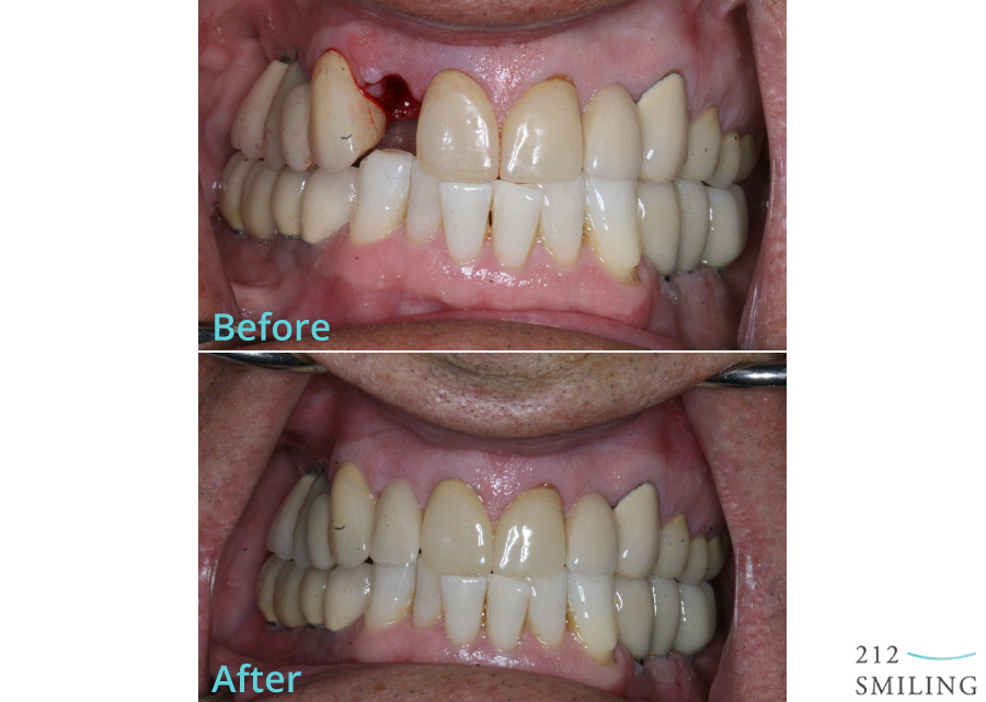 NYC-Dental-Implant-Before-and-After
