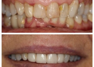 Before and After – Female – Porcelain Veneers