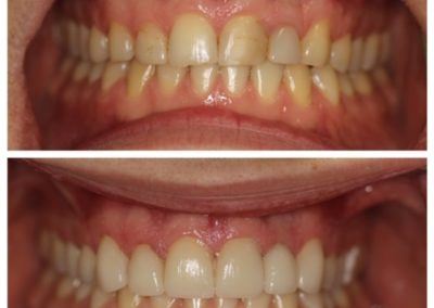 Male – Before and After – Porcelain Veneers