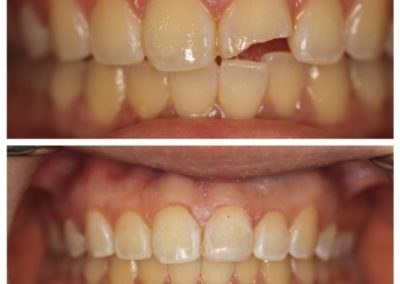 Male – Before and After – Chipped Tooth