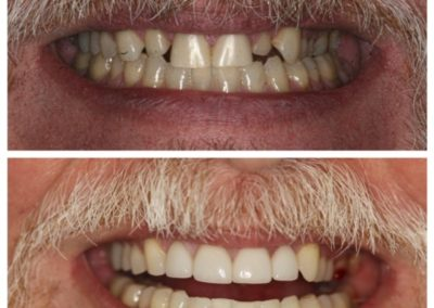 Before and After – Male – Porcelain Veneers